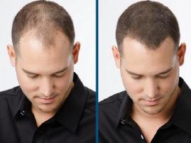 Nuo plaukų slinkimo Regaine (Rogaine) Minoxidil 5%
